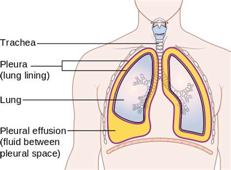 chest cavity diagram psychology of medicine pleural effusion