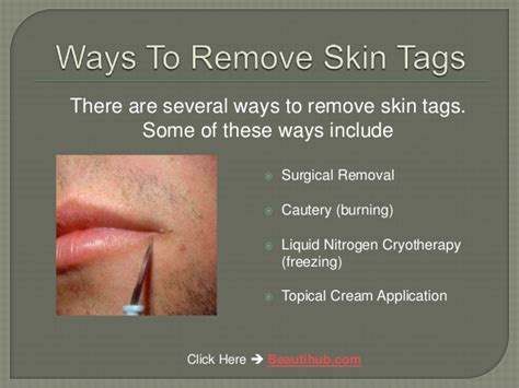 how to remove skin tags at home without