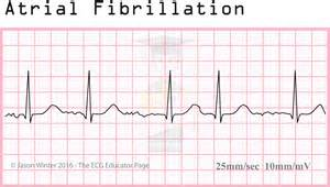 how to get out of afib at home educator atrial rhythms