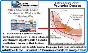 peyronie s disease home treatment peyronie s disease treatments peyronie disease treatment