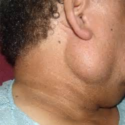 parotid neoplasms cancer of parotid parotid cancer