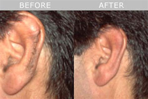 ear hair removal permanent ear hair removal by laser permanent hair removal in nottingham total image salon