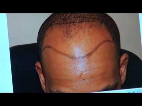 hairline parts black men black fue hair transplant restoration surgery result