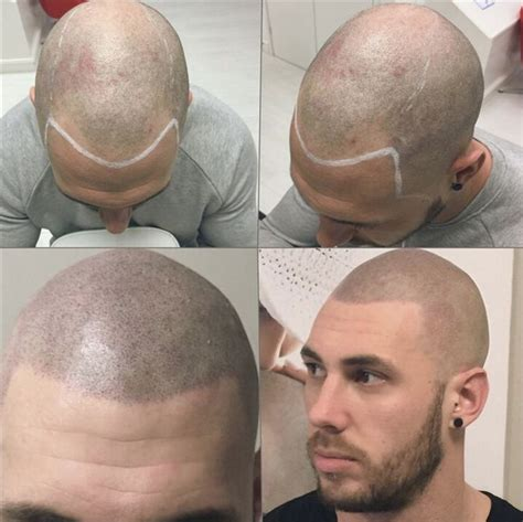 types of hair lines 1146 best spa business images on pinterest eyelash