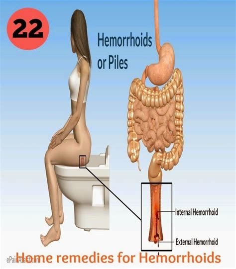 22 home remedies for hemorrhoids home the o jays and