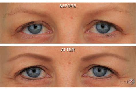 eyeliner tattoo after effects microart semi permanent eyebrows eyebrows pinterest