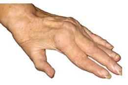 reuma test reuma test e reazione di waaler artrite reumatoide