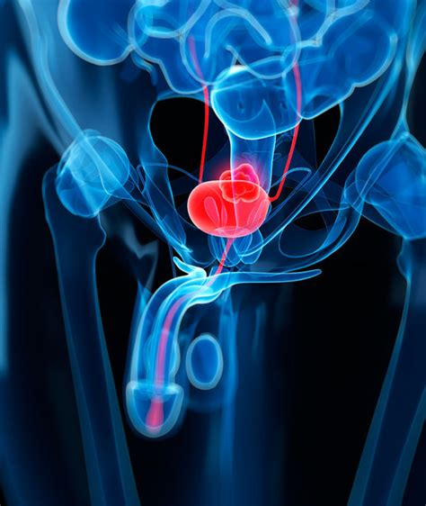 bladder cancer color bladder cancer symptoms and signs check for this colour