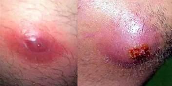 ingrown hair pus filled ingrown hair cyst removal won t go away under skin