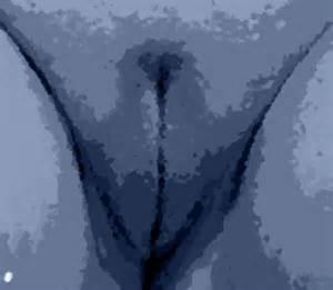 schamlippe verkleinern vorher nachher labioplastik medizinische notwendigkeit oder weiblicher