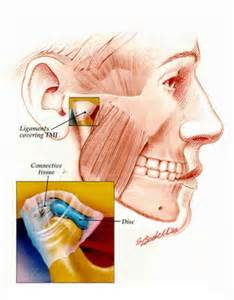 jaw joint clicking tmj symptoms