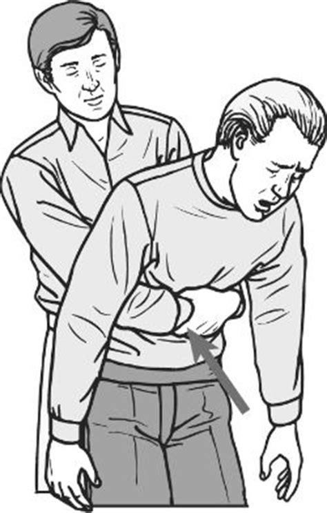 heimlich maneuver heimlich maneuver definition of heimlich maneuver by dictionary