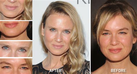celebrity plastic surgery blog celeb surgery pics celebrities look so bizarre after plastic surgery