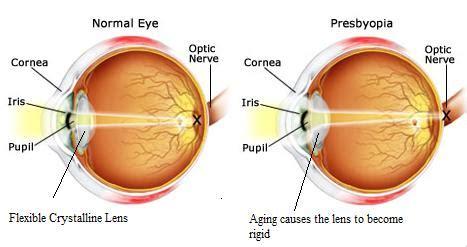 presbiopia test presbyopia d 233 finition what is