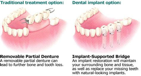 why settle with dentures when you can have dental implants