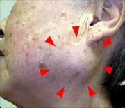 dg e11679 chandelier 胆嚢 腫瘤 seotoolnet