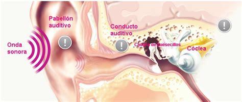 imagenes sensoriales sonoras caracter 237 sticas del sonido intensidad