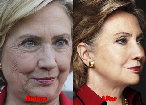 did hillary clinton get a facelift july 28th 2016 presidential election open discussion