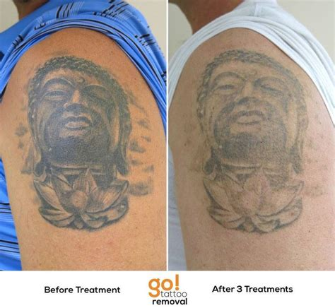 tattoo removal system 17 best images about removal in progress on