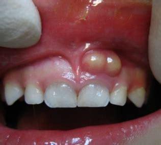 white spots  gums bumps pictures painful