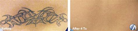 philadelphia tattoo removal philadelphia laser removal inkaway laser