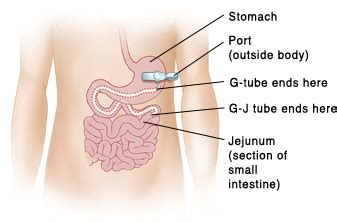 medical home portal feeding tubes and gastrostomies