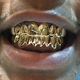 Gold Teeth Grillz | 720 x 720 jpeg 143kB