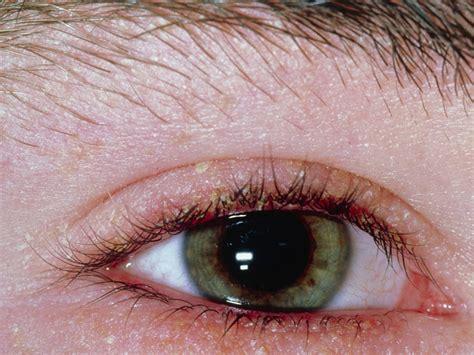 blepharitis images blepharitis babycenter