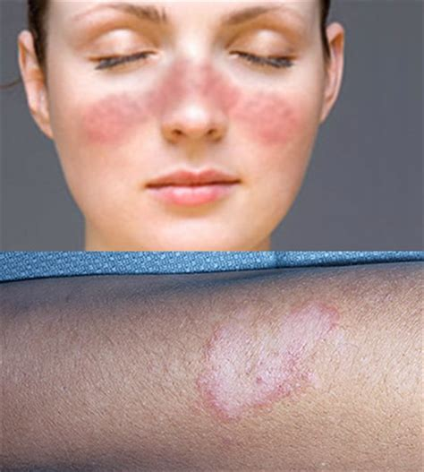 sle of will specialty lupus symptoms