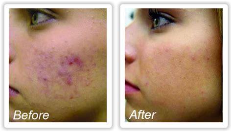 blue light for acne blue light acne treatment