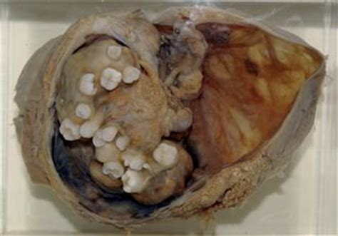 tumor with hair and teeth images teratoma with teeth and hair www pixshark images