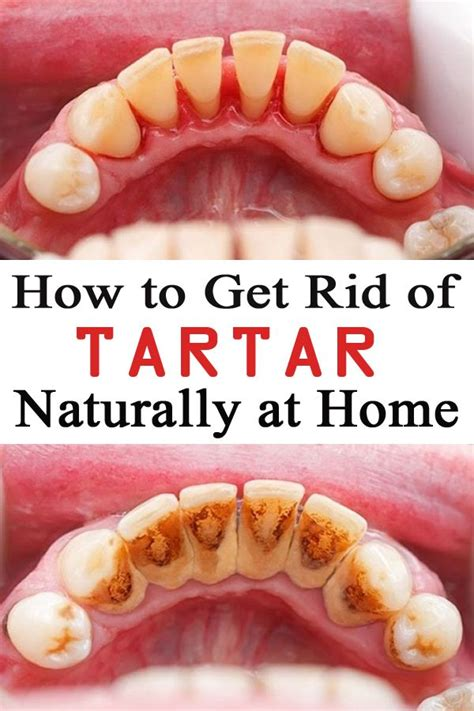 How Does Of Tartar Detox by 1000 Images About Health Wellness Fitness On