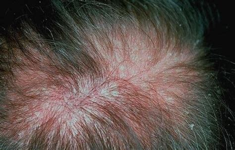 scalp itching and sores both conditions dandruff and scalp psoriasis have