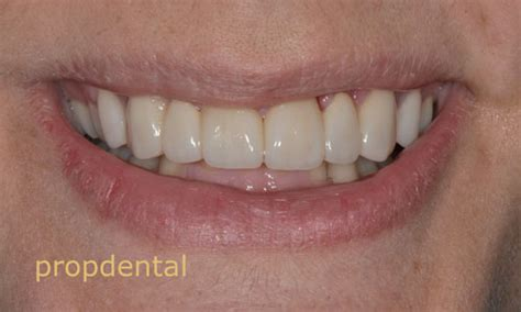 fundas zirconio problemas pr 243 tesis dentales est 233 ticas protesis de circonio libres