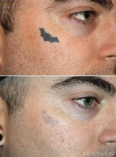 laser tattoo removal utah can now get excellent results using non invasive and