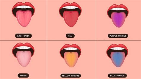 what color should your tongue be how the colour of your tongue reveals your health