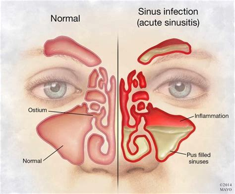 Sinus Care the 25 best ideas about maxillary sinus on