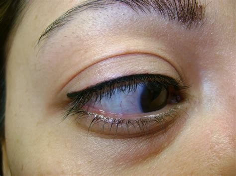 eyeliner tattoo removal eyebrow removal essex removal