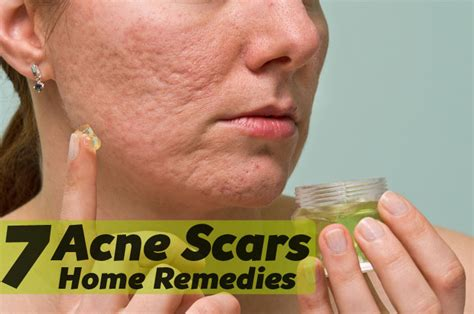 7 acne scars home remedies that works
