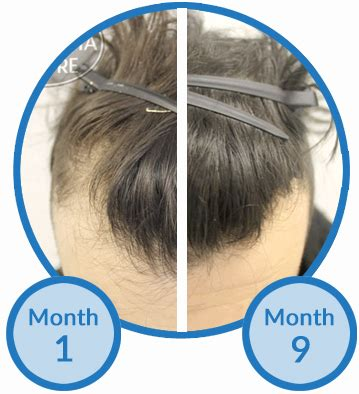 before and after widows peak advice needed for receding hairline treatment options