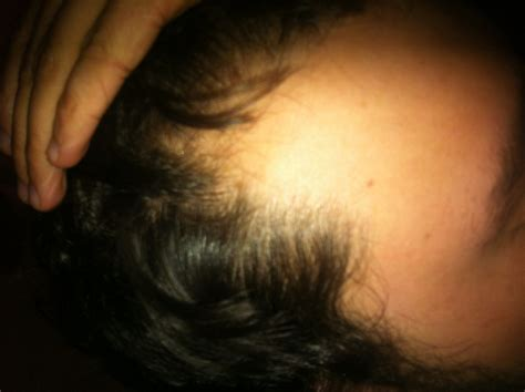 pattern hair loss male hair loss could be the first sign you have heart disease