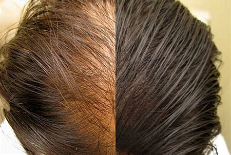 scalp micropigmentation to make hair ticker pictures hair loss solutions