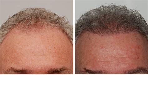 transplant hair second round draft new hair transplant procedures m d pllc oloom