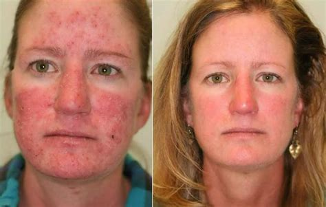 rosacea before after jpg
