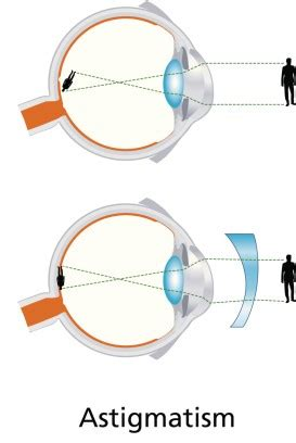 what is astigmatism? | southlands vision associates
