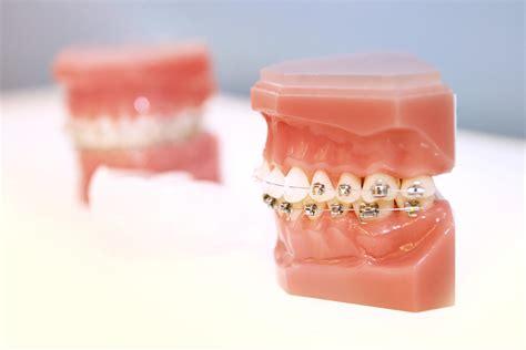 wann braucht eine feste zahnspange fachpraxis rathenow kieferorthop 228 die feste zahnspange