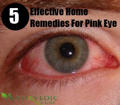 pink eye home remedies treatments and cure usa