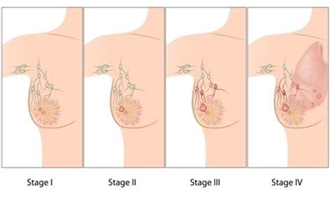 stages of breast cancer | symptoms of breast cancer