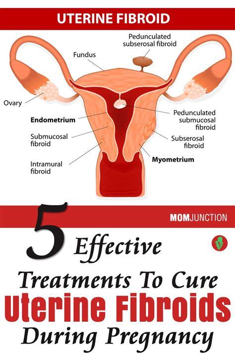 best treatment for uterine fibroids 91 best images about uterine fibroids on cure