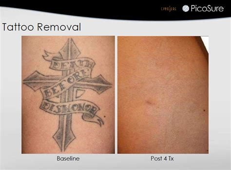 tattoo removal florida tattoo removal jupiter fl tattoo removal procedure